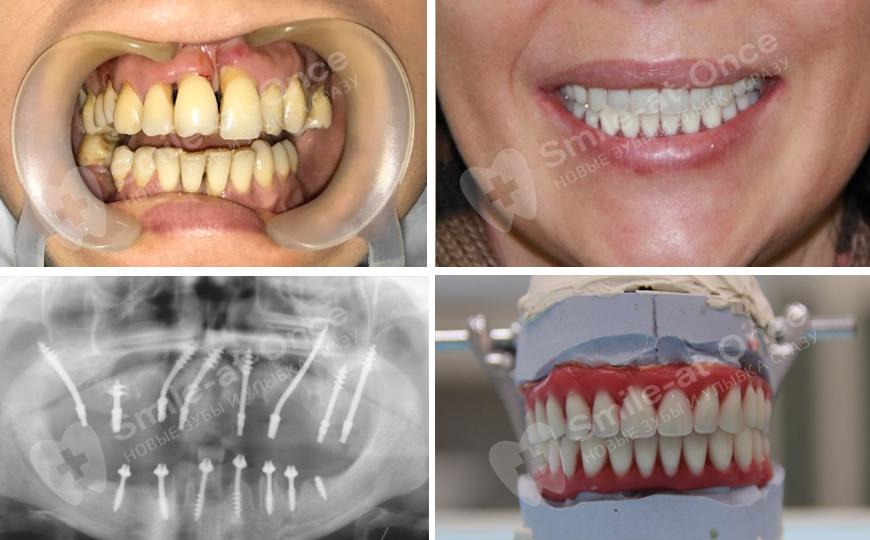 протокол немедленной имплантации зубов