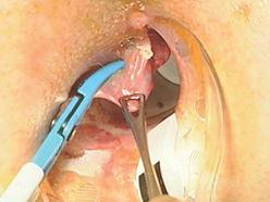 Анальный секс после операции гемороя