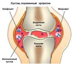 Артрит суставов. Причины, виды, симптомы и диагностика