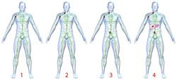 Лимфома причины симптомы и способы лечения