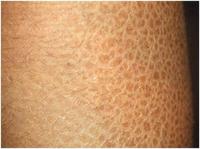 Сухая кожа лица. рук. тела - причины, симптомы, лечение