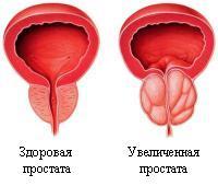 Боль в яичках при простатите лечение