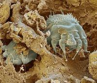 средство кожных паразитов человека