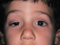Болят веки глаз — почему болят веки? Что делать если болят веки глаз?