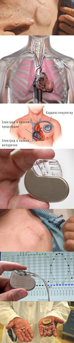 Жизнь с кардиостимулятором - Колонки врачей