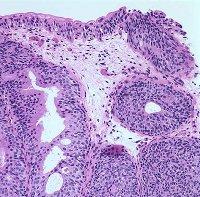 Симптомы и лечение инфекций мочевыводящих путей у женщин