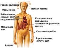 Наследственный гемохроматоз: Симптомы, Причины развития, Лечение