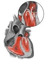 Плохо работает клапан сердца - Все про гипертонию