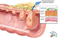 Лечение рака толстого кишечника