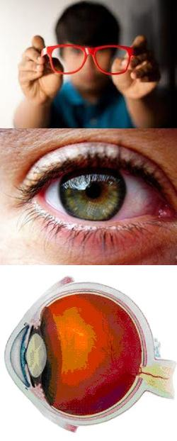 Почему резко падает зрение: причины и заболевания, вызывающие ухудшение зрения у детей и взрослых