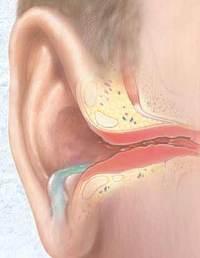 софрадекс инструкция по применению для детей в ухо - фото 10