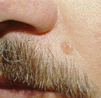 Базально-клеточный рак кожи, фото, лечение и прогноз.
