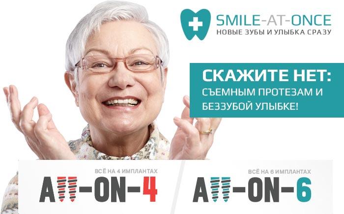 Виды имплантации зубов с немедленной нагрузкой