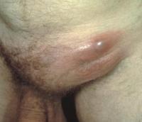 Передается ли бактериальный вагиноз мужчинам