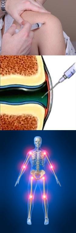Хондролон современный препарат для лечения суставов