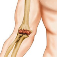 Припухлость и боль в локтевом суставе железноводск санатории с заболеваниями суставов