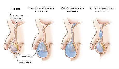 Изменение яичек во время секса