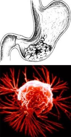 Лечение пациента при раке желудка