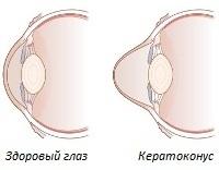 Кератоконус: что это такое, причины, симптомы, лечение
