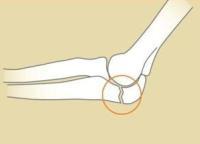Болит локтевая кость левой руки