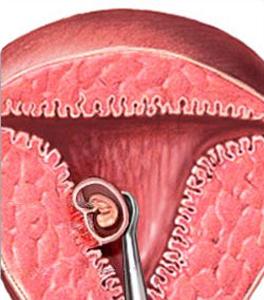причины низкого холестерина в крови у женщин