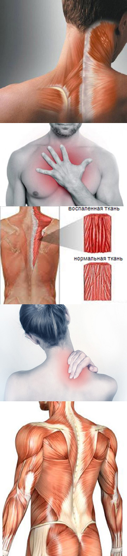 Миозит мышц: симптомы, лечение, миозит у детей