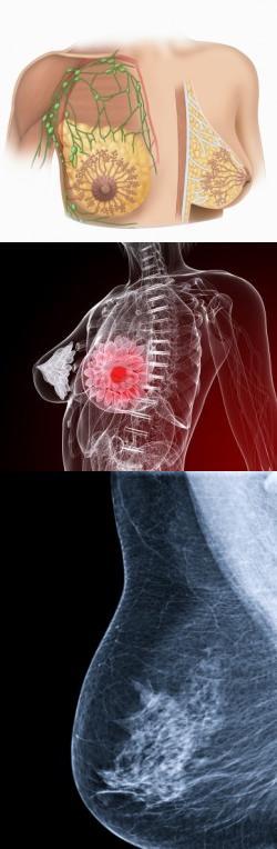 Шишка в грудной железе у женщин затвердение образование уплотнения или шарика в груди