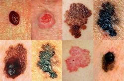 Что за болезнь меланома