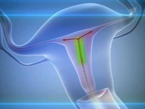 Мирена. Отзывы женщин после 40-50 лет при эндометриозе, миоме матки, климаксе, гиперплазии, менопаузе, аденомиозе. Можно ли похудеть
