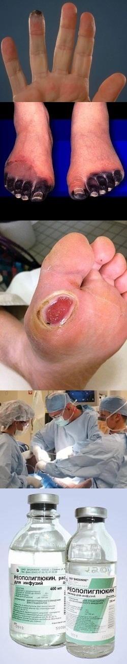 Что такое гангрена ноги фото начальная стадия