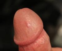 Посреди секса головка члена начала гореть
