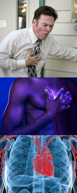 Боль в грудине посередине (в грудной клетке) – причины. Боль за грудиной посередине – что делать?