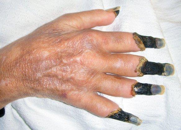 Ноготь на ноге стал толстым лечение