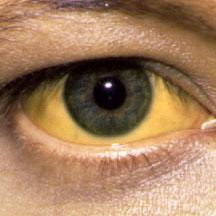 желтуха желтые глаза