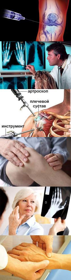 Что такое артрит суставов, его виды и тактика лечения.