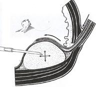 ...пиелонефрита при отсутствии рентгенологически доказанного пузырно-мочеточникового рефлюкса (ПМР).