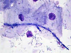 bakterioskopiya-vaginalnogo-sekreta