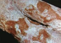Пиодерми́и. pseudofurunculosis; Псевдо + фурункулез (Фурункулёз); син.: абсцесс потовых желез множественный...