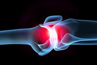 Помощь при боли в суставах, сопровождающей различные заболевания
