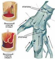 Перевязка внутренней сперматический вены