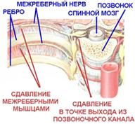 Миалгия симптомы и лечение, миалгия шеи, ребер, мышц бедра и ног.