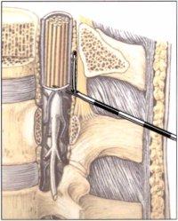 Местные анестетики в стоматологии