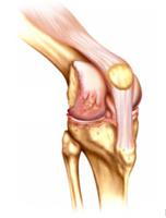 Медикаментозное лечение боли в суставах при остеоартрите коленного сустава