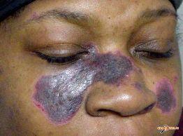 Болезнь штрюмпеля симптомы и лечение