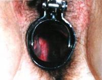 Причины зуда половых органов | passion ru