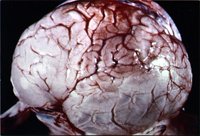 получите информацию от чего бывает отек мозга фабрика Новая