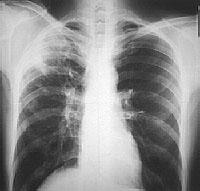 паразиты в легких человека симптомы и лечение