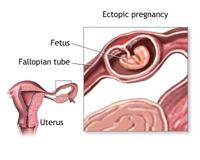 Секс и внематочная беременность