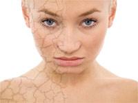 Пигментные пятна на лице чем можно отбеливать лицо