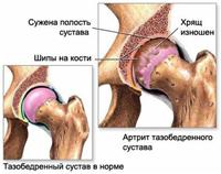 Боли в тазобедренном суставе – когда следует обратиться к врачу?
